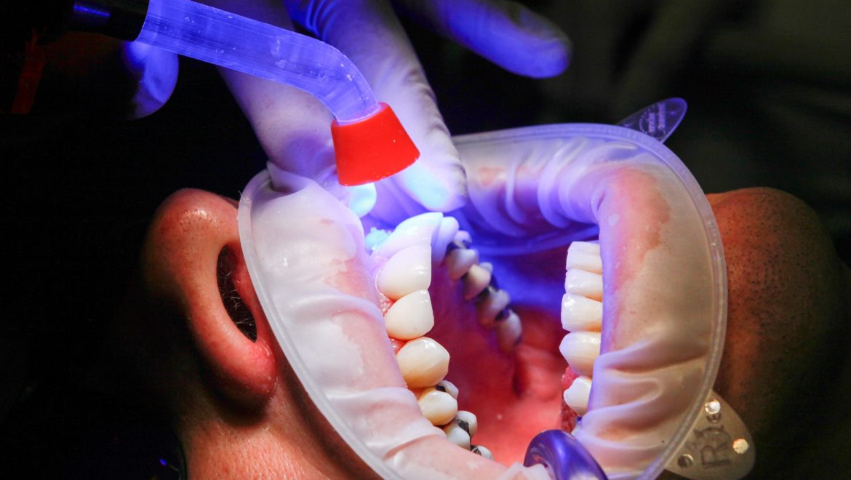 ¿Dónde reclamar a un dentista?