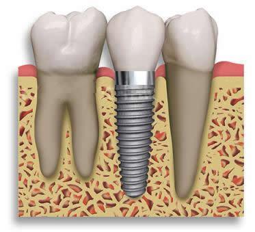 Sepsis dental